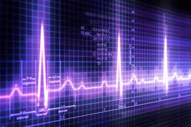Zdravniški pregledi so skoraj obvezni pri visokih premijah.