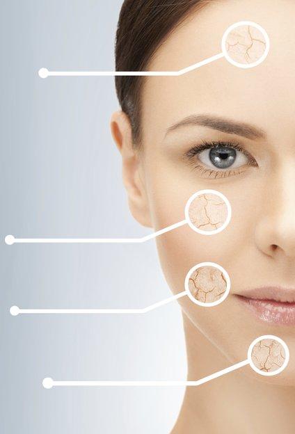 Tudi maščobne blazinice se na obrazu z leti manjšajo, zaradi vpliva gravitacije pa se začnejo tudi povešati in koncentrirati na spodnjem predelu obraza.