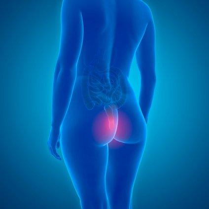 Hemoroidi v večini primerov niso nevarni, so pa zelo neprijeten pojav.