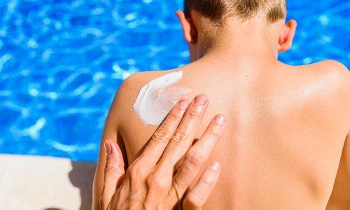 Kako zaščititi otroško kožo pred nevarnimi sončnimi žarki?