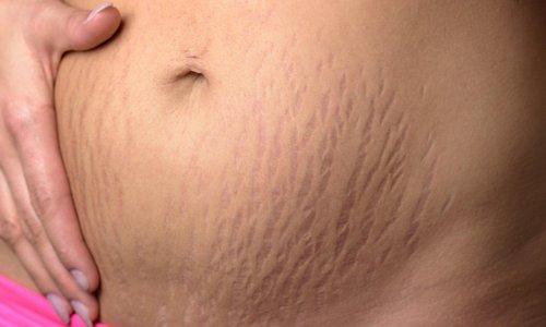 DIASTAZA: proti koncu nosečnosti jo ima približno 60 odstotkov žensk