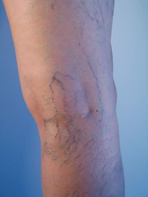 Krčne žile so bolezensko razširjene vene.