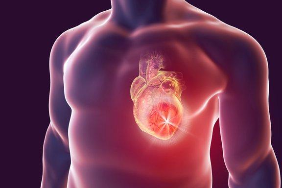 Mnogi niti ne vedo, da imajo sladkorno bolezen. Toda ta že povzroča okvare organov. Nezdravljena sladkorna bolezen tudi poveča tveganje za infarkt.