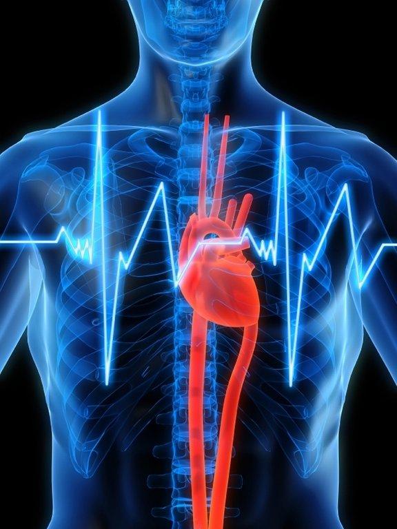 Srčni infarkt je posledica ateroskleroze venčnih žil, ki prehranjujejo srčno mišico. Včasih na grozeč srčni infarkt opozarjajo napadi prsnih bolečin (angina pektoris).