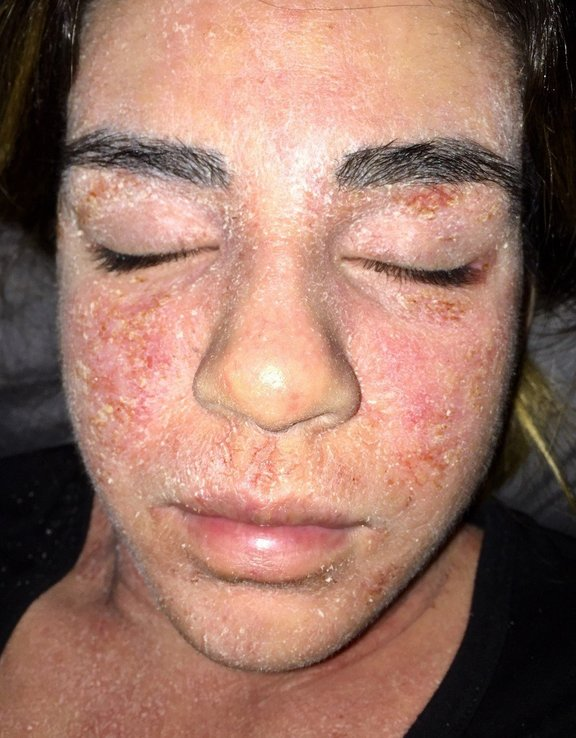 Ko je prenehala uporabljati steroidna topična mazila, so se pojavili hudi odtegnitveni simptomi.
