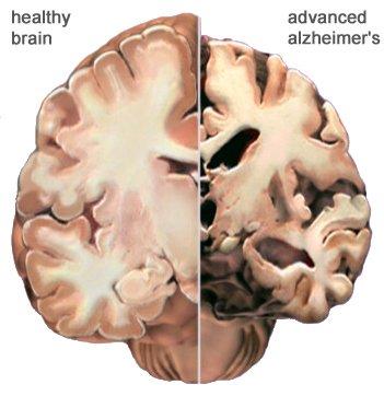 Zdravi možgani in možgani bolnika, ki trpi za napredovano Alzheimerjevo boleznijo.