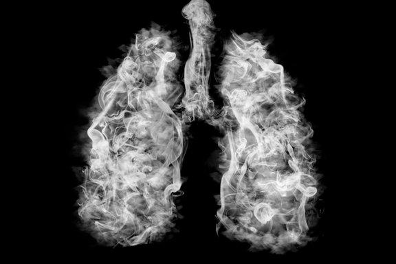 Glavni dejavnik tveganja je kajenje.