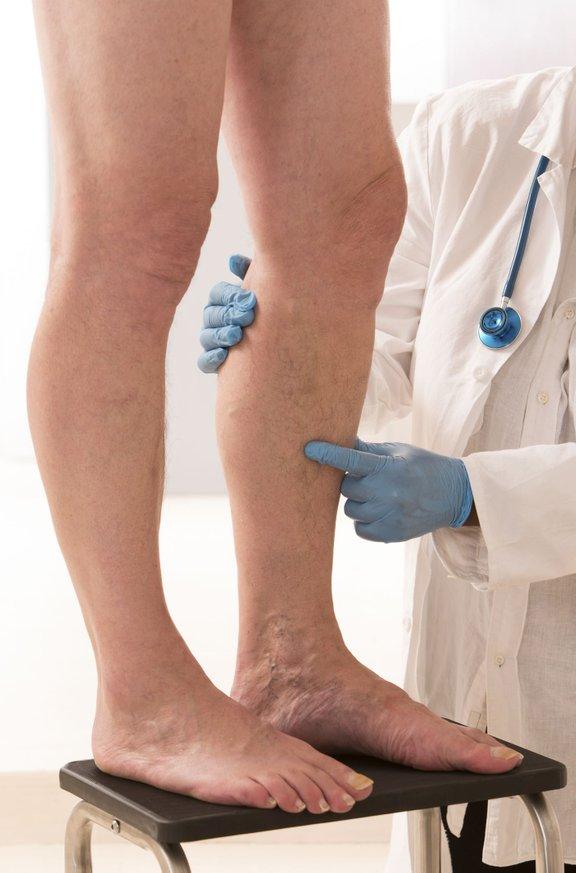 Čeprav je zamašene arterije težje odkriti kot nekatera druga stanja, nekateri simptomi lahko kažejo na to težavo.