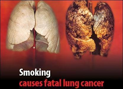 Pljučni rak je maligen tumor, ki se razvije v pljučnem tkivu.