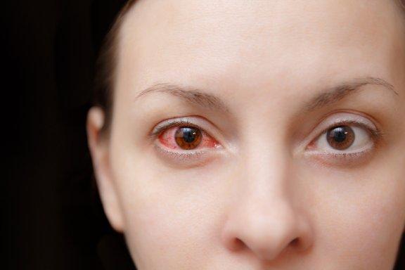Spanje s kontaktnimi lečami lahko privede do očesne infekcije, ki je včasih lahko zelo resna.