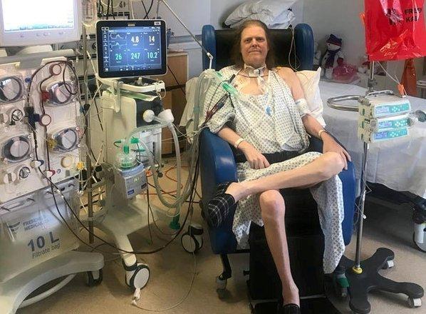 Umrl Britanec, ki je bil najdlje hospitaliziran zaradi covida-19