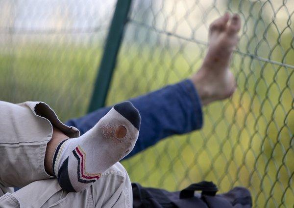 Strgana nogavica pri begunskem otroku