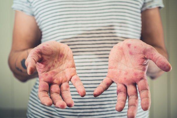 Kako hitro se lahko okužite z ošpicami?
