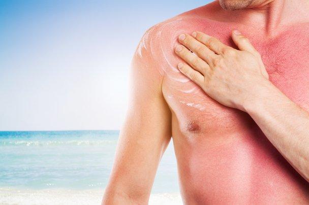 Kako si pomagati pri sončnih opeklinah in vročinski izčrpanosti?