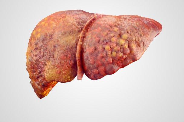 Kakšni so simptomi ciroze jeter?
