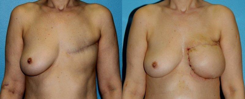Slovenski zdravniki in strokovnjaki s fakultete za strojništvo so izumili novo mikrokirurško metodo rekonstruiranja dojke po raku s pomočjo laserskih meritev in 3D-kalupa dojke.