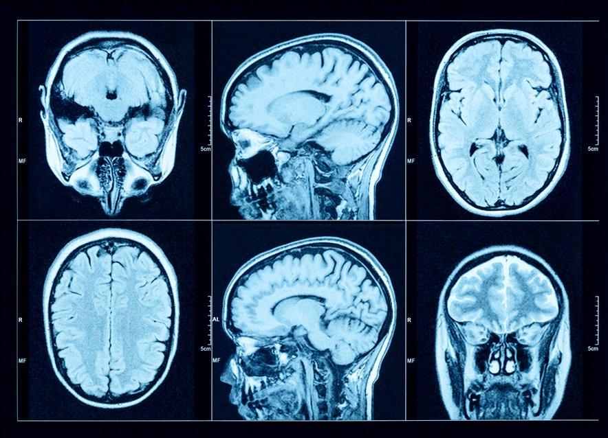 Šest tednov po tem, ko so udeleženci raziskave nehali uživati alkohol, je CT slikanje možganov še vedno kazalo posledice. (Fotografija je simbolična.)