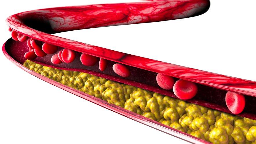 Če imate povišan holesterol, bi ob zdravi prehrani lahko redno uživali še orehe.