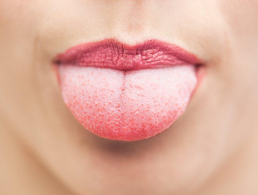 Če na svojem jeziku opazite rumeno prevleko, so možen vzrok zanjo težave z debelim črevesjem in slabo delovanje prebave.