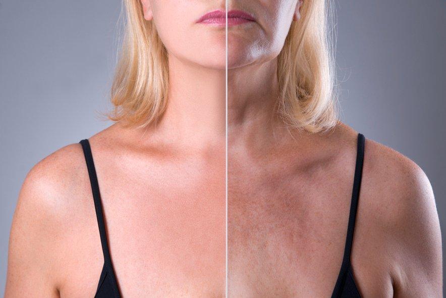 V poletnem času je sončnim žarkom izpostavljena večja površina kože in tudi čas izpostavitve je veliko daljši.