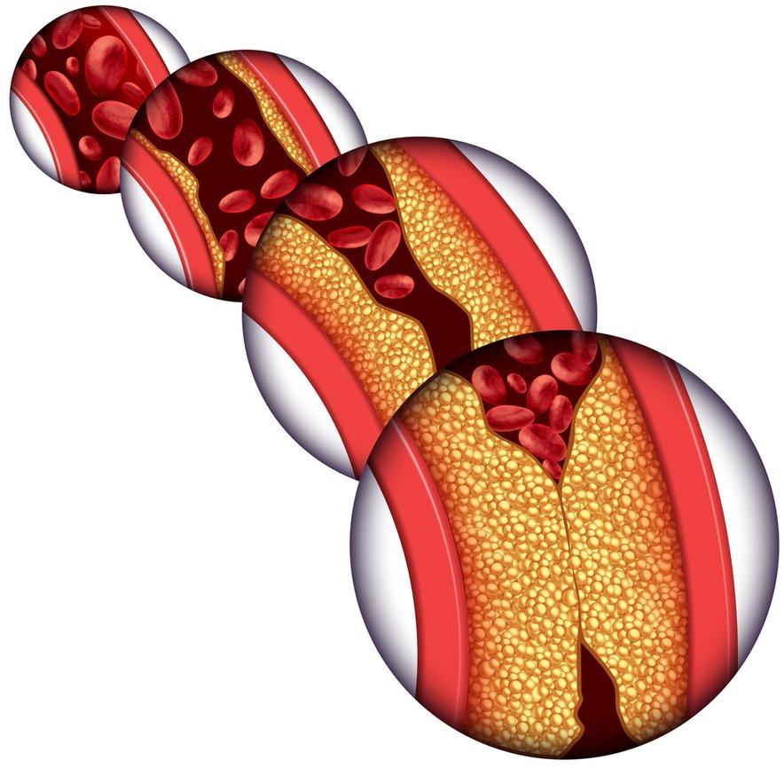 Rdeče ploščice predstavljajo trombocite. Njihova naloga je strjevanje krvi, ko se ranimo. Težava nastane, če se strjujejo, brez da bi se mi ranili. Sčasoma lahko krvni strdki zamašijo žilo in povzročijo kap.