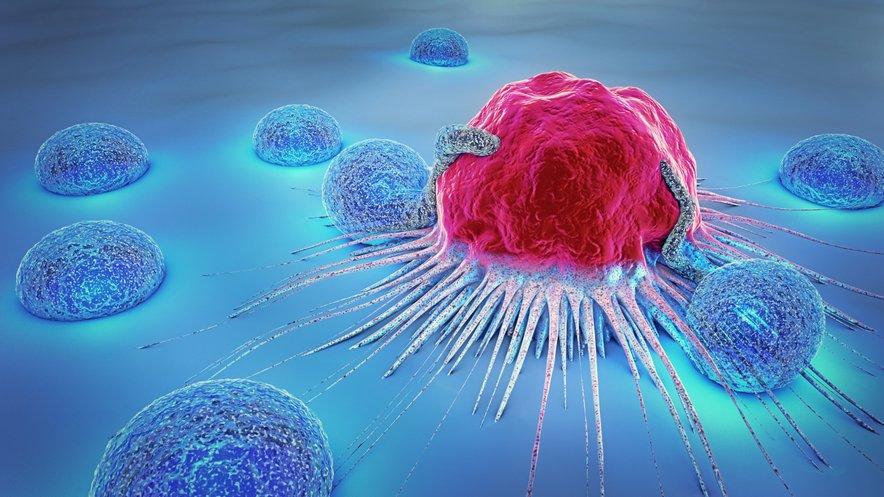 Novo upanje za dva milijona neozdravljivo bolnih rakavih bolnikov prihaja iz ZDA. Nova imununoterapija je uspela skrčiti tumorje raka dojke, pljuč in mezoteliome.