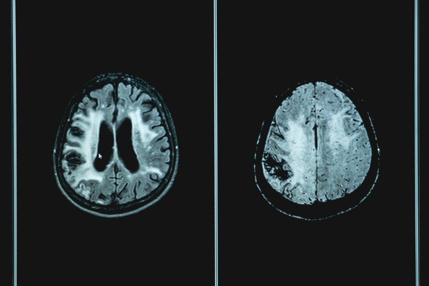 Tiste demence, ki se imenujejo frontotemporalne, prizadenejo sprednji čelni in senčni del možganov.