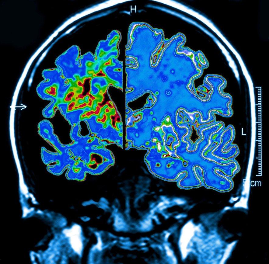 Možgani bolnika z Alzheimerjevo boleznijo (levo) v primerjavi z možgani zdravega osebka (desno).