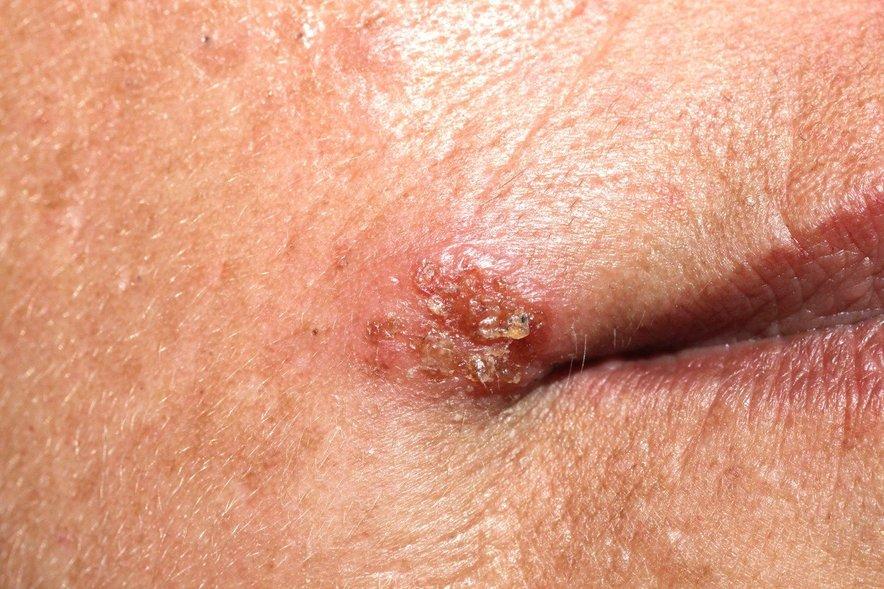 Virus herpes simpleks po okužbi ostane v telesu vse življenje. V primeru herpesa na ustnicah se običajno naseli v živčnih celicah, ki oživčujejo obraz.