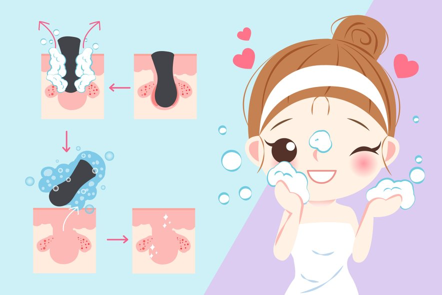 Različna stanja kože, kot na primer neenakomerna obarvanost in zamašene pore, sprožijo nabiranje odmrlih celih na površini kože.
