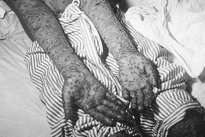 Bolezen se kaže v obliki gnojnih mehurčkov po telesu, zlasti po glavi in udih. Spremlja jo vročina. Pri hujši obliki bolezni (variola major) je smrtnost 30- do 35-odstotna.