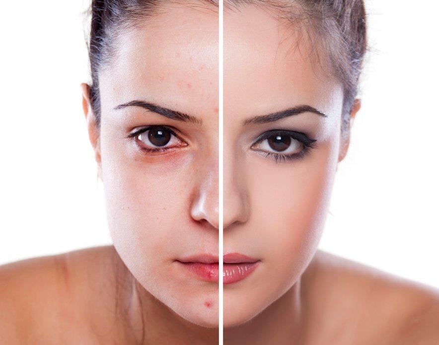 Strokovnjaki priporočajo uporabo mineralnih pudrov, na katere se koža odziva drugače.