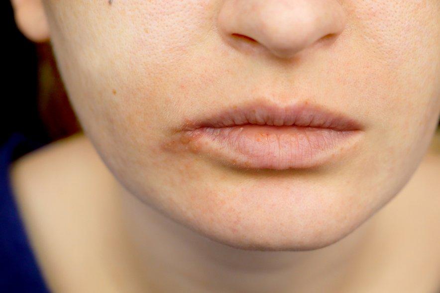 Po navadi nosimo virus herpes simpleks že v telesu, izraža pa se glede na našo odpornost.