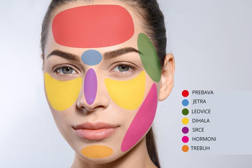 Kaj pomeni, če se vam mozolji vedno delajo na istem delu obraza?