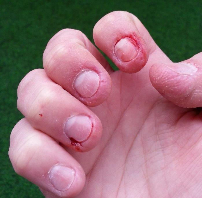 Težave se lahko pojavijo tudi na rokah. To so roke Urške iz Škofje Loke.