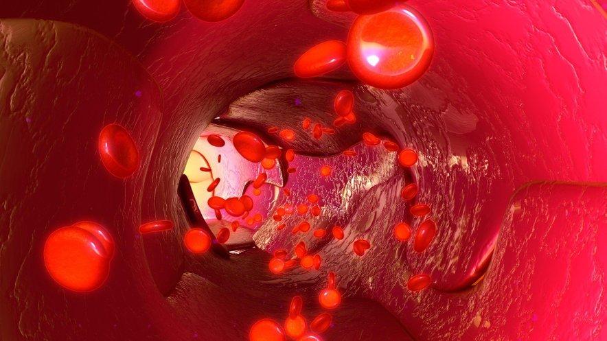 Previsok krvni tlak ogroža srce pa tudi druge organe - ledvice, možgane, oči ...