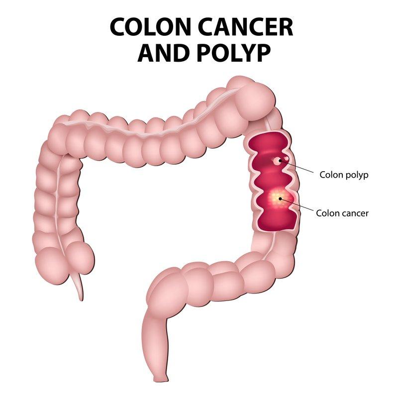 Rak debelega črevesa in polipi (črevesni polip, črevesni rak).