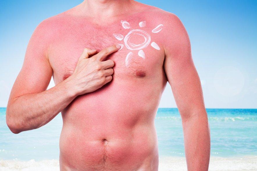 Sevanju UV-žarkov lahko povzroči številne resne poškodbe kože.