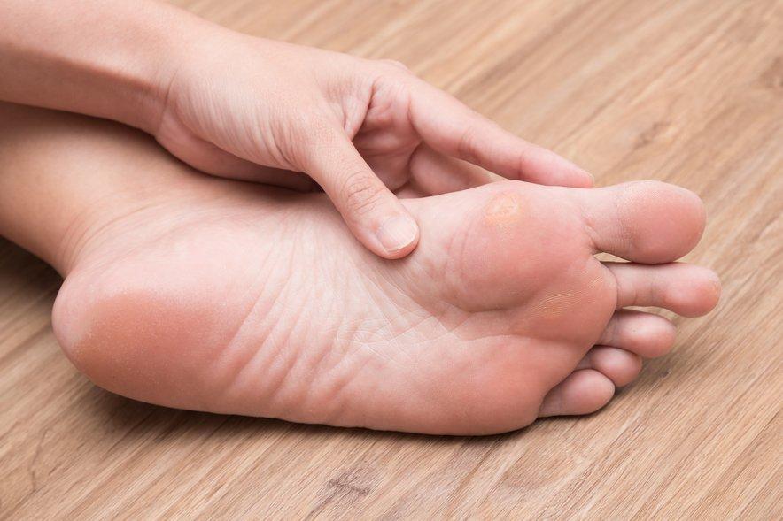 Da bi imeli čim manj zatrdele kože, po vsakem prhanju ali kopanju stopala namažite s kremo, ki vsebuje ureo.