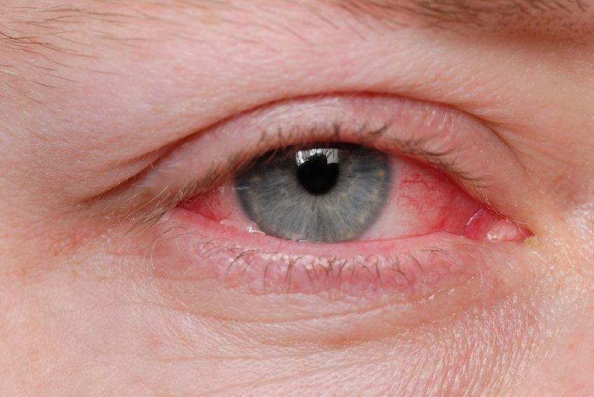 Najpogostejši simptomi, ki opozarjajo na tovrstna obolenja, so predvsem poslabšanje vida, pojav rdečice in solzenje očesnega zrkla.