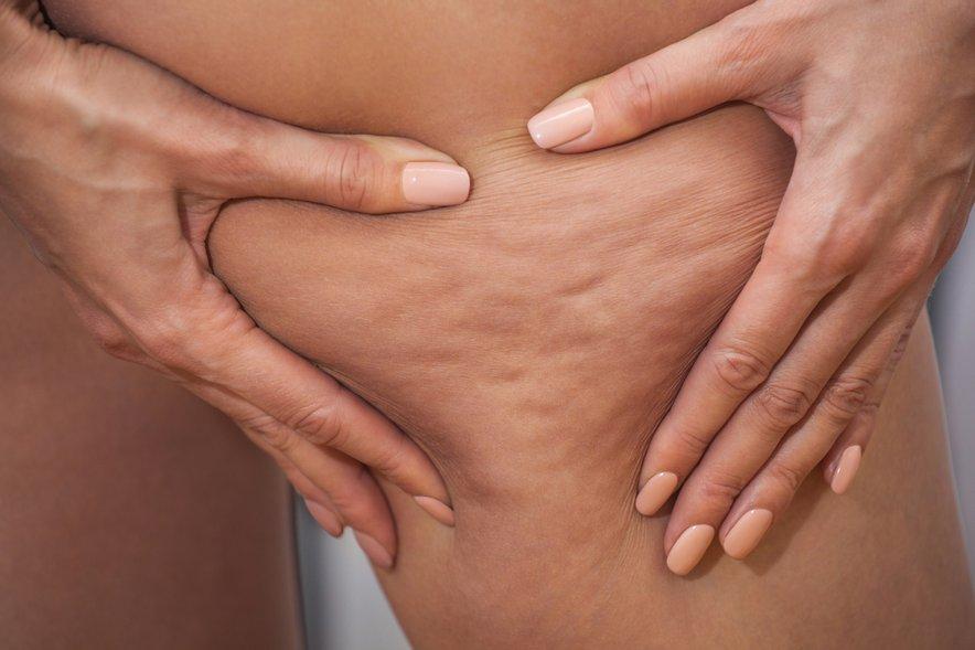 Z glineno oblogo boste razstrupili kožo in pospešili cirkulacijo krvi.