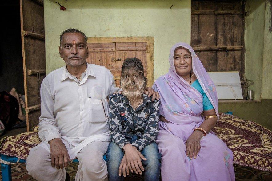 ''Po petih hčerah smo veliko molili v templjih, da bi imeli še sina. Naše molitve so bile uslišane in dobili smo Laita. Malo je drugačen, a zame še vedno izjemno poseben,'' pove njegova mati.