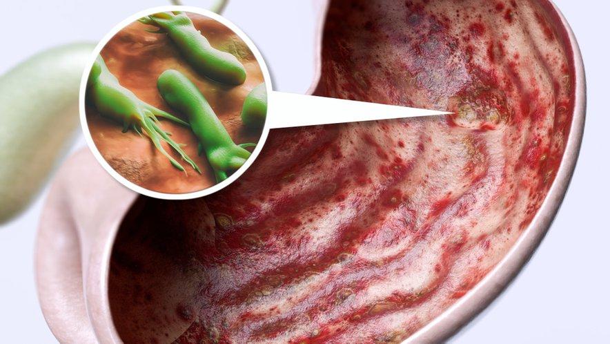 Boleče razjede želodca najpogosteje povzroča bakterija Helicobater pylori, ki povzroča čezmerno izločanje želodčne kisline in nato okvaro sluznice želdoca in dvanajstnika.