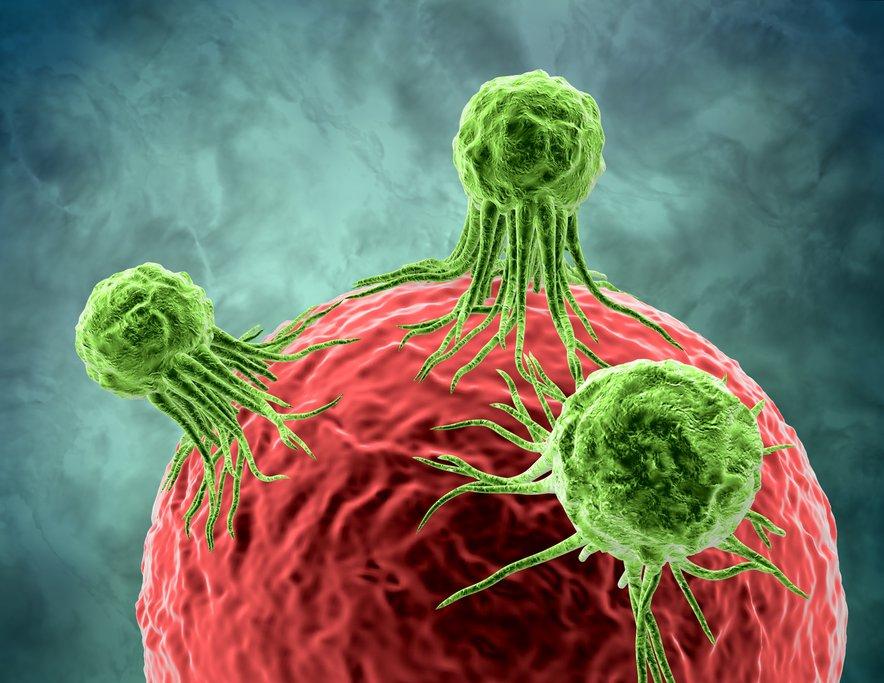 To je eden redkih rakov, ki ga je mogoče preprečiti.