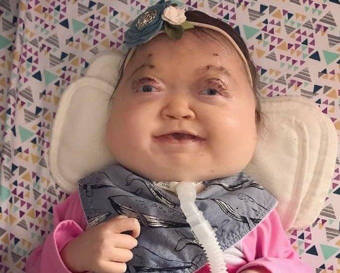 Mali Charlotte Patt, ki se je rodila z redko genetsko boleznijo, Shprintzen-Goldbergovin sindromom, so zdravniki napovedali le nekaj dni življenja, a čudežna deklica bo kmalu praznovala drugi rojstni dan in se še kar bori za svoje življenje.