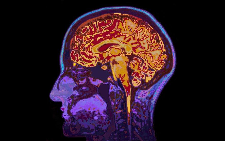 Gobe vsebujejo aminokislino, ki očitno lahko pomaga preprečiti kognitivno upočasnitev. Pri ljudeh, ki so imeli to stanje, jo je v krvi namreč bilo zelo malo.