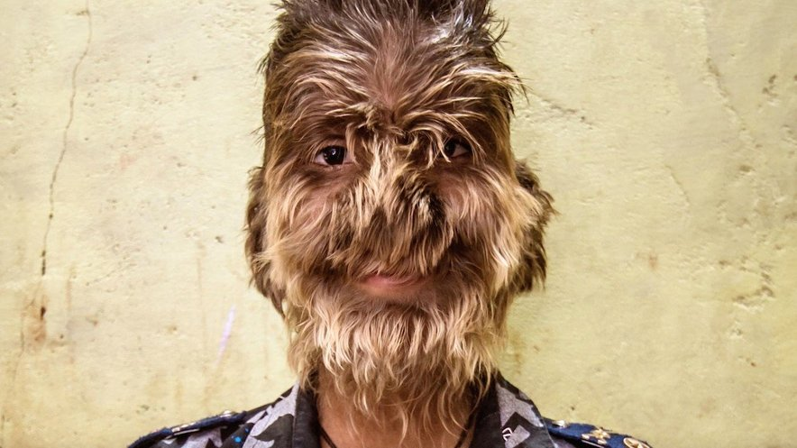 13-letni Lalit se je rodil z volkodlakovim sindromom, zaradi katerega je po obrazu poraščen z dlakami. Kljub temu pa je izjemno priljubljen med svojimi vrstniki.