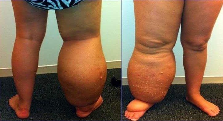 Limfedem je velika oteklina, ki se razvije, ko limfni sistem telesa ne deluje pravilno.