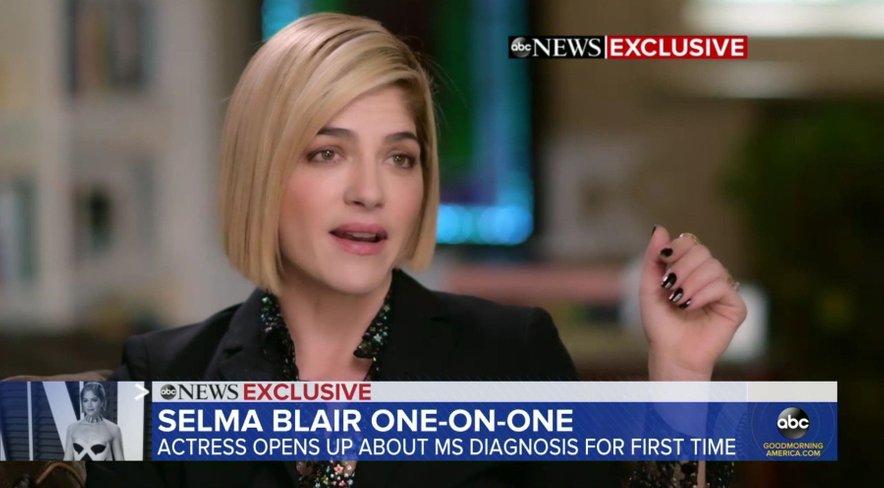 Selma je v oddaji Good Morning America prvič spregovorila o svoji bolezni z novinarji.