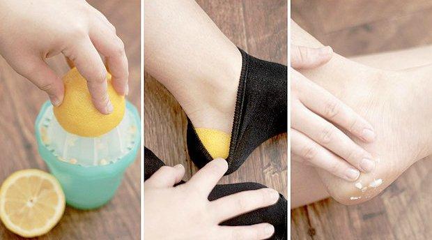Limona za trdo kožo na peti